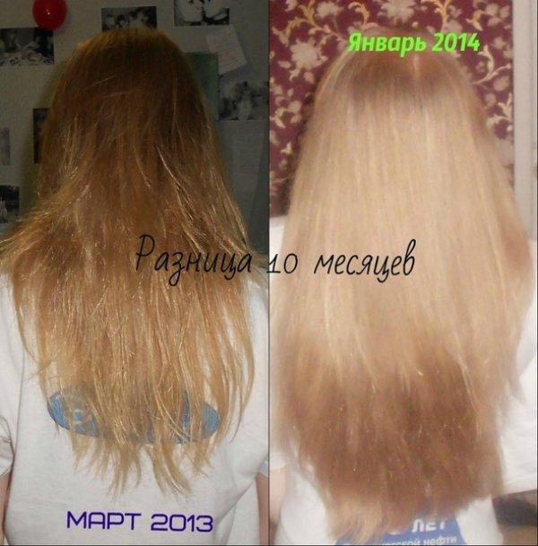 Через сколько растут волосы на голове
