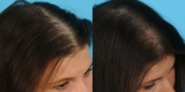 Укол для роста волос