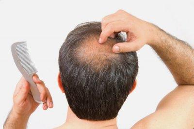 Как ускорить рост волос на голове
