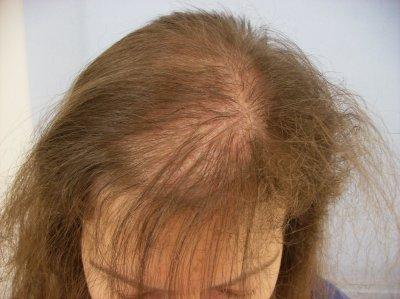 Перхоть зуд выпадение волос от чего могут быть