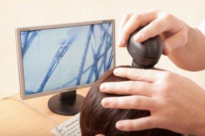 Врач при болезни кожи головы