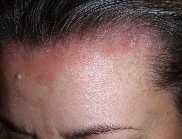 Корка перхоти на голове: причины появления и методы лечения корочки у взрослого человека