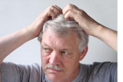 Сухая кожа головы и чешется, перхоть: что делать? Как увлажнить в домашних условиях? Маска, шампунь, крем и другие средства от сухости