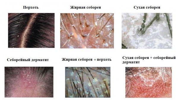 Сухая себорея кожи головы фото