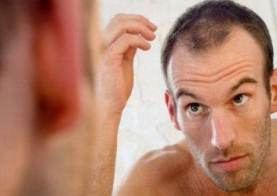 Лучшие способы борьбы с перхотью у мужчин