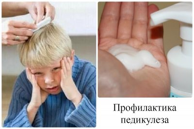 Профилактика педикулеза у детей: народные и специализированные средства от вшей