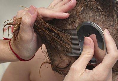 Как использовать керосин от вшей и гнид