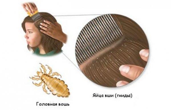 Гребешок для вычесывания гнид: что это такое, зачем он нужен и можно ли вычесывать гнид обычной расческой?