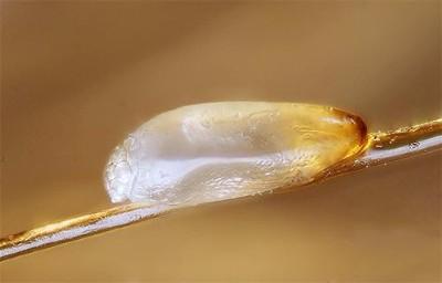 Инкубационный период вши и гнид у человека