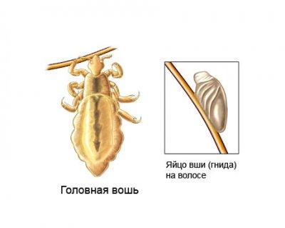 Сколько длится инкубационный период у вшей и гнид