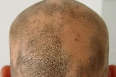 Очаговая алопеция у мужчин причины и лечение