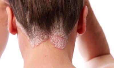 Псориаз на голове - как лечить, причины и симптомы заболевания