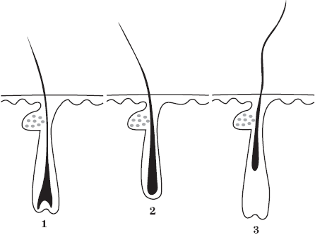 Можно ли вылечить андрогенную алопецию? Причины облысения. Трансплантация волос