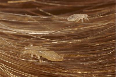 Как отклеить гнид от волос