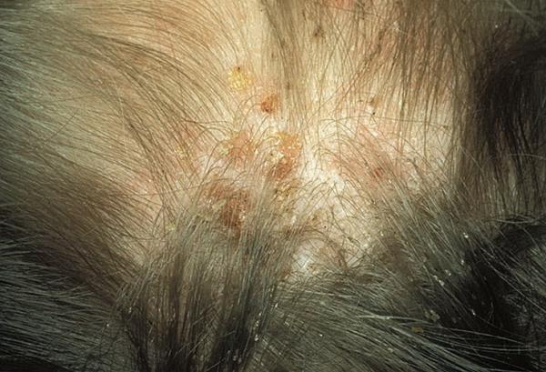 Как выглядят укусы разных видов вшей
