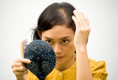 Алопеция: как лечить в домашних условиях
