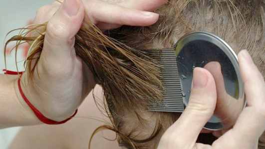 Признаки вшей в волосах
