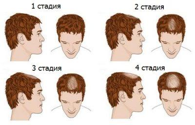 Средства от облысения у мужчин: лекарства, препараты и витамины от выпадения волос