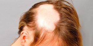 Неожиданное выпадение волос - алопеция у женщин (очаговая)
