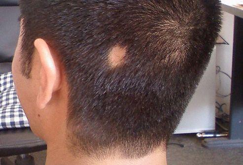 Алопеция - Болезни дерматологии и венерологии