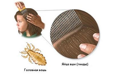 Как избавиться от гнид на длинных волосах?