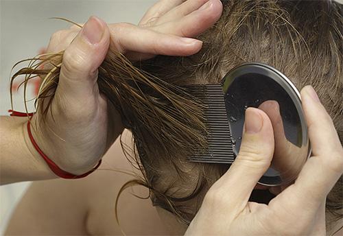 Как вылечить вши на голове у человека
