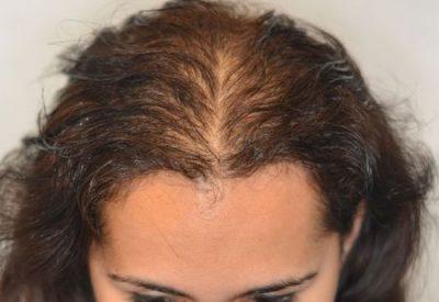 Как побороть диффузное выпадение волос? Симптомы, причины и лечение