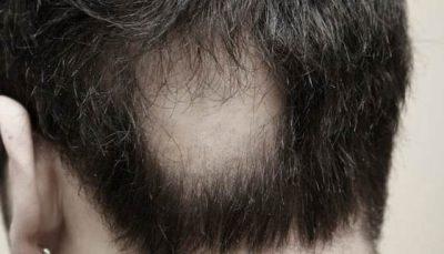 Очаговая алопеция у мужчин на голове – причины и лечение