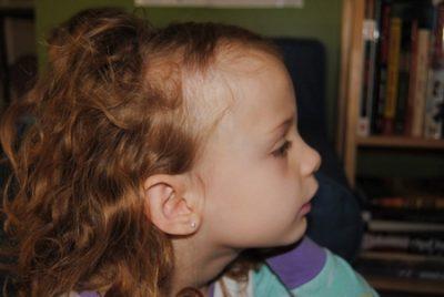 Лечение алопеции у детей – причины болезни и методы борьбы народными средствами.