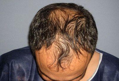 Народные средства от выпадения волос у мужчин в домашних условиях: лечимся от облысения на голове! – Здоровье волос