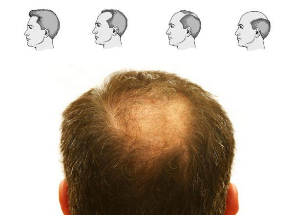Сколько волос в день выпадает при алопеции