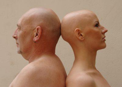 Андрогенетическая алопеция у женщин признаки