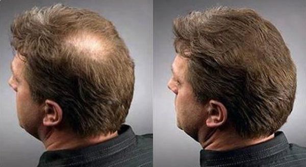 Мезотерапия для волос ➤Цена от 2500 руб ☑Мезотерапия для роста волос в Москве⭐