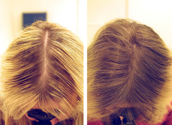 Уколы для роста волос на голове в домашних условиях