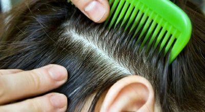 Какие гормоны надо сдать при выпадении волос