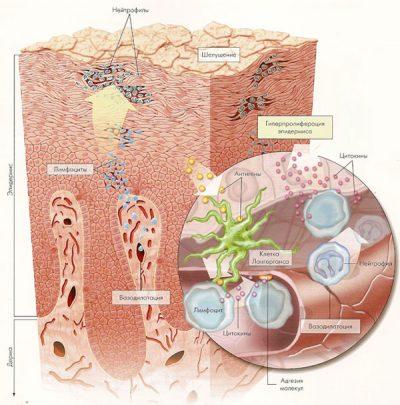 Начинающийся псориаз кожи головы