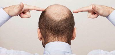 Что делать мужчинам чтобы волосы не выпадали