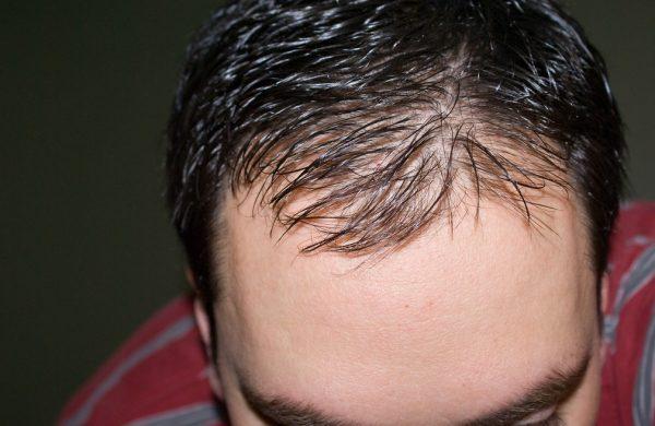 Выпадение волос на голове у мужчин