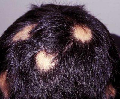 Лечение очаговой алопеции у женщин: особенности, препараты, народные средства