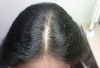 Лечение диффузной алопеции у женщин препаратами и народными средствами