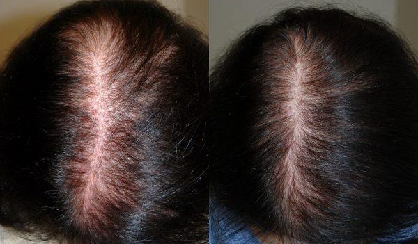От выпадение волос облысение вылечим