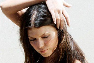 Алопеция у женщин: фото облысения, диагностика и лечение