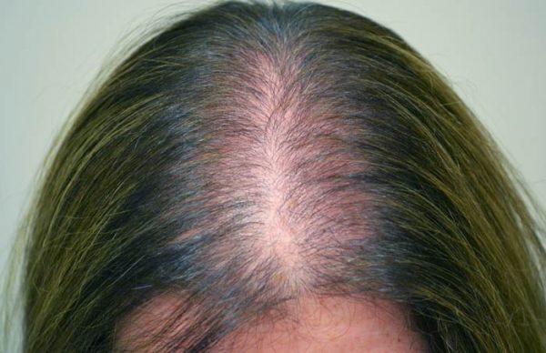 Причины выпадения волос как бороться