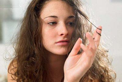 Что делать, если очень сухая кожа головы: лечение