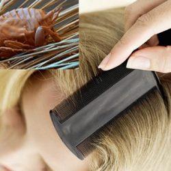 Эффективно и доступно - различные вариации гребня от вшей и гнид
