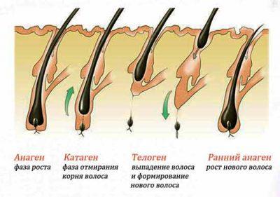 Выпадение волос – норма и патология