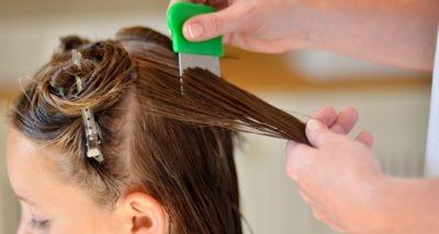 Как убрать мертвых гнид с волос?
